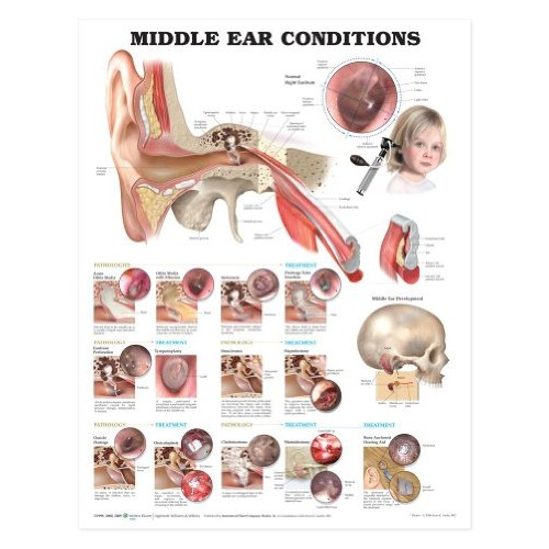 Ear Anatomy Chart – Middle Conditions