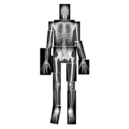 Roylco R-5911 18 Piece True to Life Human x-Ray Set Grade Kindergarten 1 01 Height 121 Wide 145 Length Pack of 18