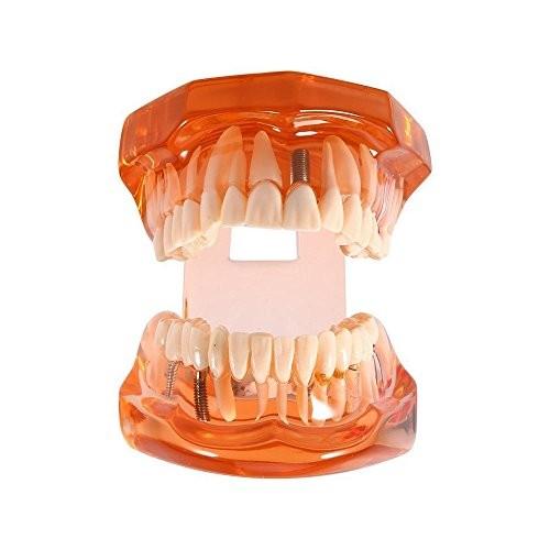 DR WHITE Dental Teeth Model OrangeTransparent Implant Disease Dentist Standard Pathological Removable Tooth Teaching Tools for Student